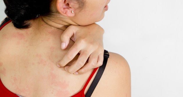 Skin Diseases (Dermatitis)
