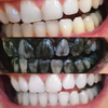 BLACK SNOW™ Activated Charcoal Teeth Whitening
