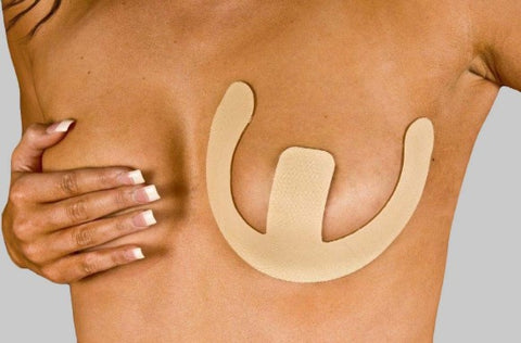 NewGel+  Anchors for Breast Scars Beige - NG-126