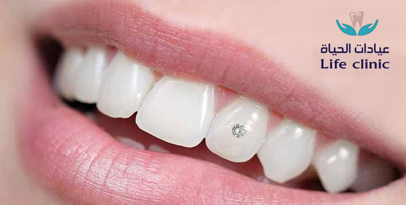 Silver or Colored Dental Diamond Installation