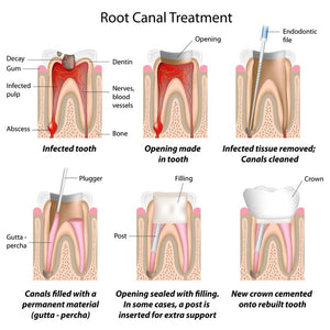 Probiotic Bacteria are Being Studied for Root Canals