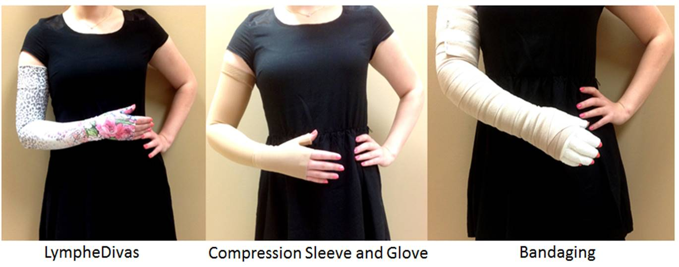 925f622b85 Once a reduction has been achieved (usually after 2 weeks of intensive  treatment), a compression garment (ie. a sleeve or a stocking) is fit to  maintain the ...