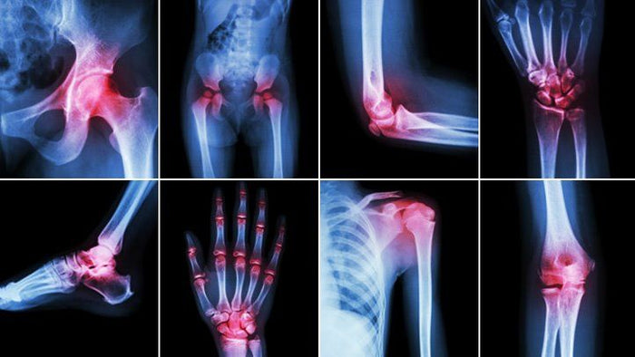 HOW TO STOP JOINT PAIN