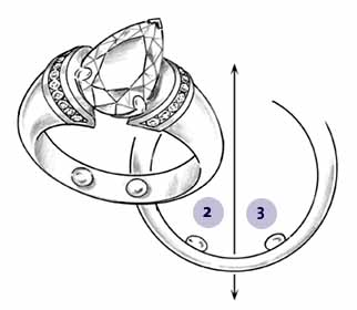 Arthritic Knuckle and Top Heavy Ring Solutions