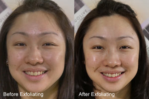 RADIANCE REVEALER - Superfruit Exfoliating Gel (Water-based)