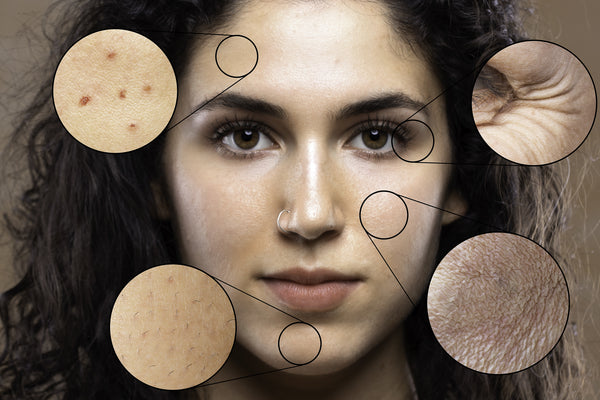 10 Ways the Changing Environment is Changing Your Skin