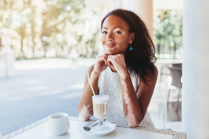 Self-Care Tips for Vitiligo Patients