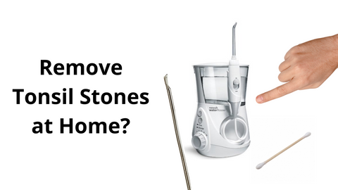 Remove tonsil stones at home?