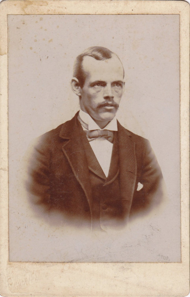 Sleepless Years- 1800s Antique Photograph- Victorian Man- Dark Circles Under Eyes- Creepy Picture- Haunting Cabinet Photo- Paper Ephemera
