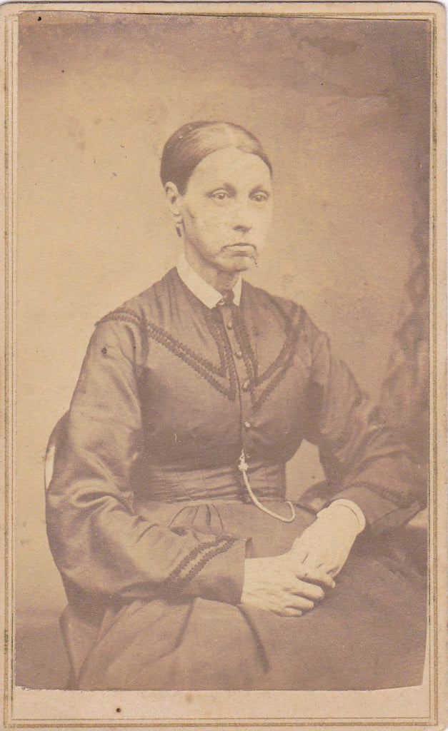 Frail and Gaunt- 1800s Antique Photograph- Sickly Victorian Woman- Providence, RI- Haunting Portrait- Photographer S B Brown- CDV Photo