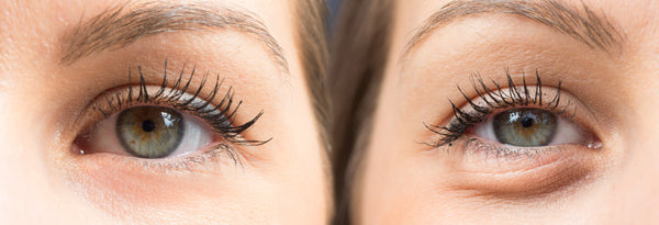 Puffy Eyes: How They Happen and How to Fix Them
