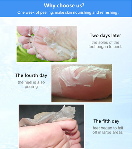 Image of Foot Peel Exfoliating Foot Mask