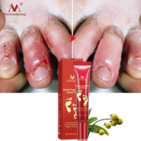 Anti Fungal Infection Feet Repair Herbal Relieve Beriberi Treatment Foot Care Cream Foot Treatment 15g
