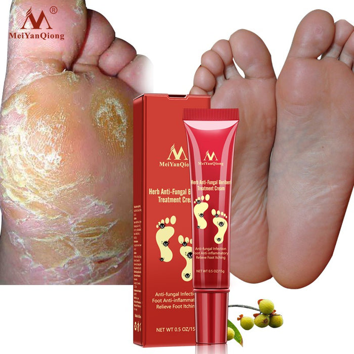 Anti Fungal Infection Feet Repair Herbal Relieve Beriberi Treatment Foot Care Cream Foot