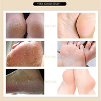 Hot sale Herbal Anti-Drying Crack Foot Cream Effective Anti Fungal Moisturizing Foot Skin Care