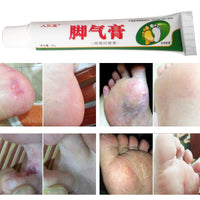 Foot Cream Feet Care For Athlete's Foot Blisters Itchy Erosive Beriberi Bad Feet Ointment Anti-chapping Peeling for Foot Care