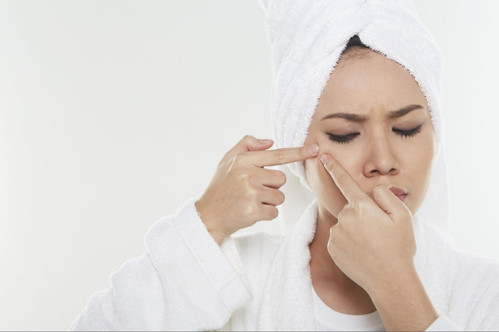 woman trying to pop her pimples
