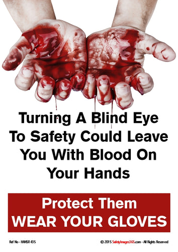 Picture of hands covered in blood with the caption turning a blind eye to safety could leave you with blood on your hands.