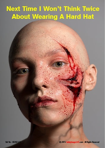 Picture of a woman with a shaved head and a large gash across the side of her face.