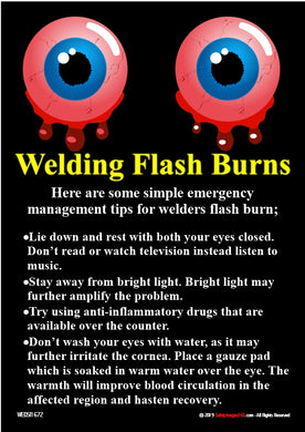 Pair of eyes that have been affected by welding flash burns.