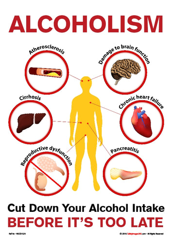 Images of a human body and examples of the effect of alcohol on the organs.