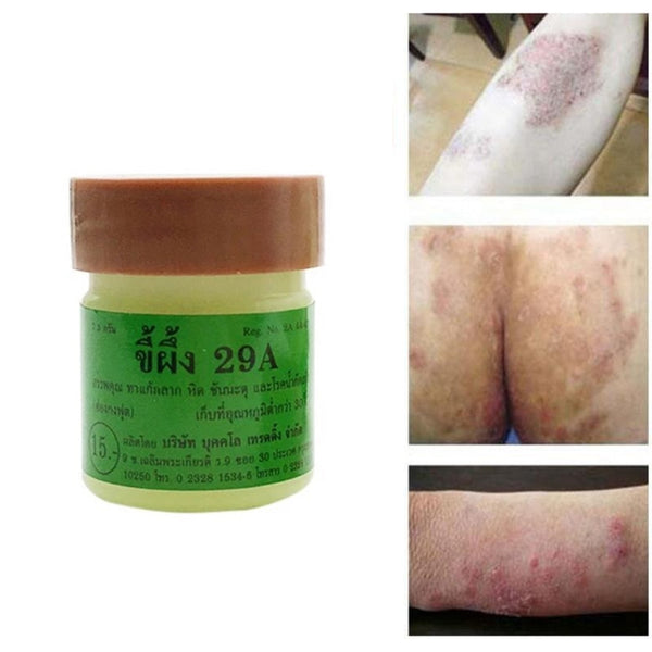 29A Antipruritic Eczema Psoriasis Cream and Dermatitis Thailand Traditional Therapy Ointments Antibacterial Body Cream TSLM2