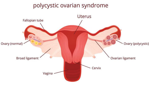 Polycistics ovaries