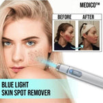 MEDICO™ Blue Light Skin Spot Remover