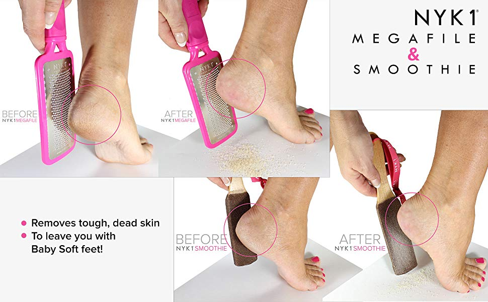 NYK1 Foot Rasp and Pumice Stone Smoothie to remove hard dead skin on your feet