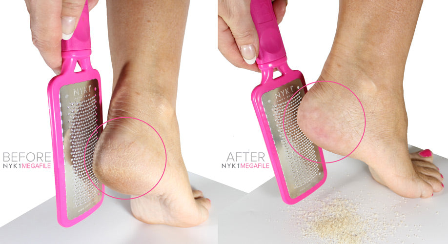 NYK1 Megafile Foot Hard Skin Remover In Pink