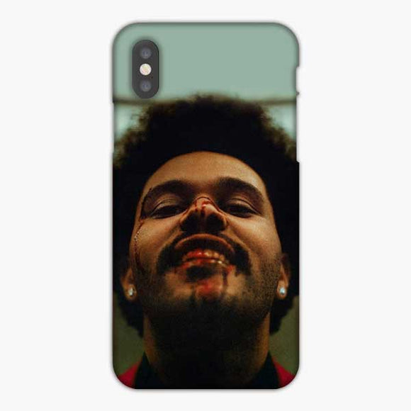 Blinding Lights The Weeknd Welcomes Madness And Heals The Broken Heart iPhone X Case, Snap 3D Case