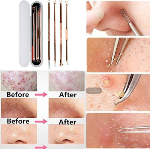 Stainless Steel Blackhead Remover Acne Needle Tweezers Blackhead Extractor for Pimple Blemish Comedone Acne Spots Remover Kit