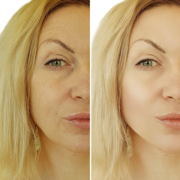 The Anti-Wrinkle Routine