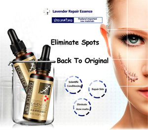 Stretch Marks and Scar Removal Lavender Oil