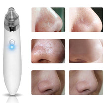 Load image into Gallery viewer, Vacuum Pore Blackheads Acne Cleaner