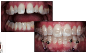 Perfect-A-Smile Aligner Pontic Paint