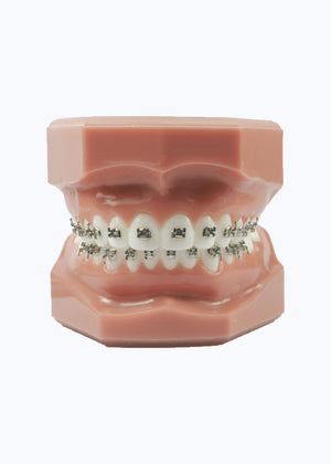 Evolve Orthodontic Metal Brackets