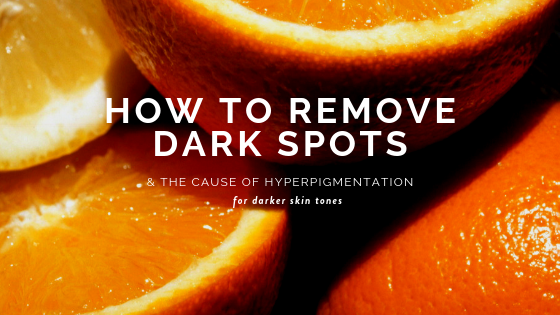 Causes of Dark Spots and how to brighten up hyper pigmentation