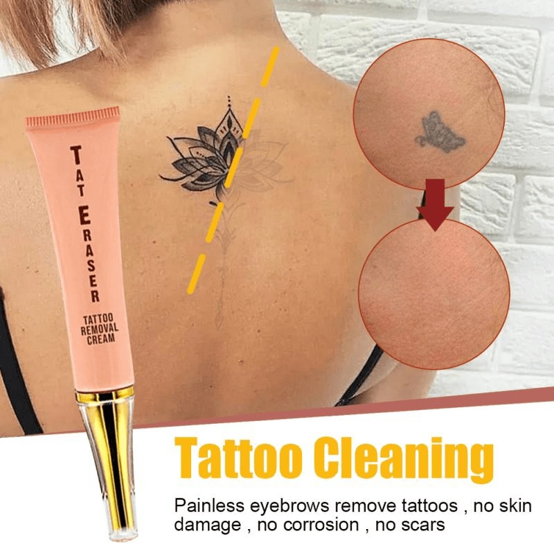 Natural Plant Extract Tattoo Removal Cream - Redbovi.com