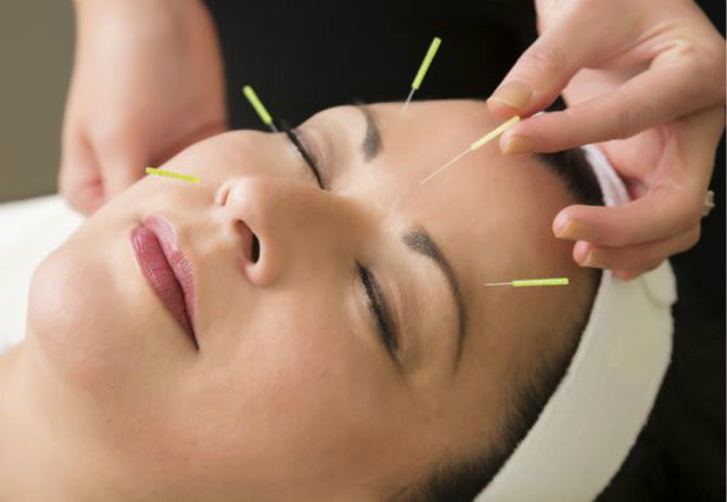 Acupuncture: How it works, uses and risks