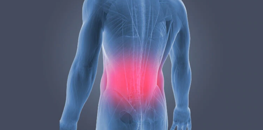 5 Natural Remedies For Lower Back Pain Relief Ijoou