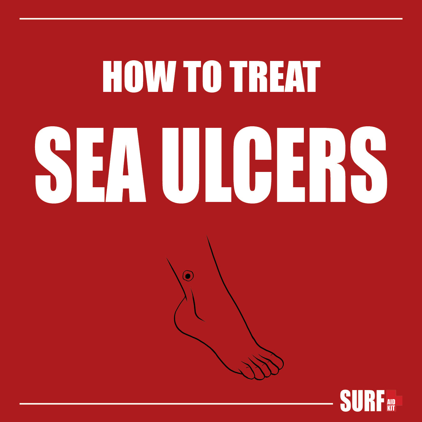 Sea Ulcers Treatment