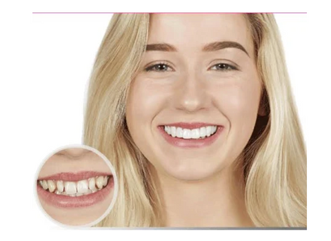 best-snap-on-smile-teeth-veneers-that-you-can-eat-with-teethveneerz