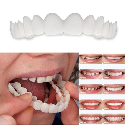Snap On Smile Veneers Suppliers