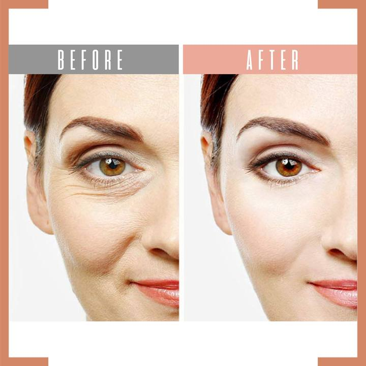 Instantly Ageless, Puffy Eye Bag Removal