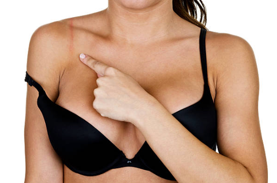 5 Reasons Why Your Bra is Painful