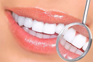 Purle Teeth Whitening Pen