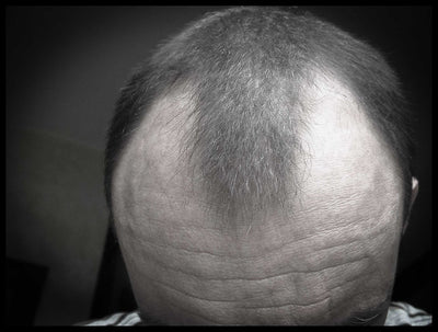 How Much Of Hair Loss Is Genetic?