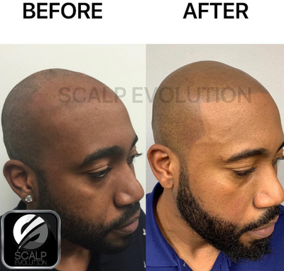 How Long Does Scalp Micropigmentation Last?