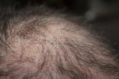 The Best Hair Loss Treatments For Men.